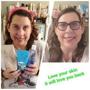 Love Your Skin it Will Love You Back
